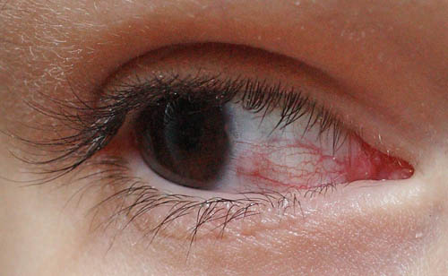 Прыщи на глазах – какие причины?