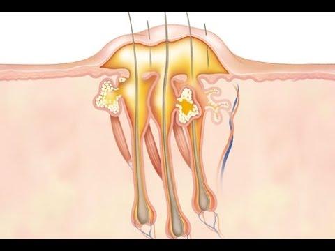Прыщи на попе у женщин - причины и лечение