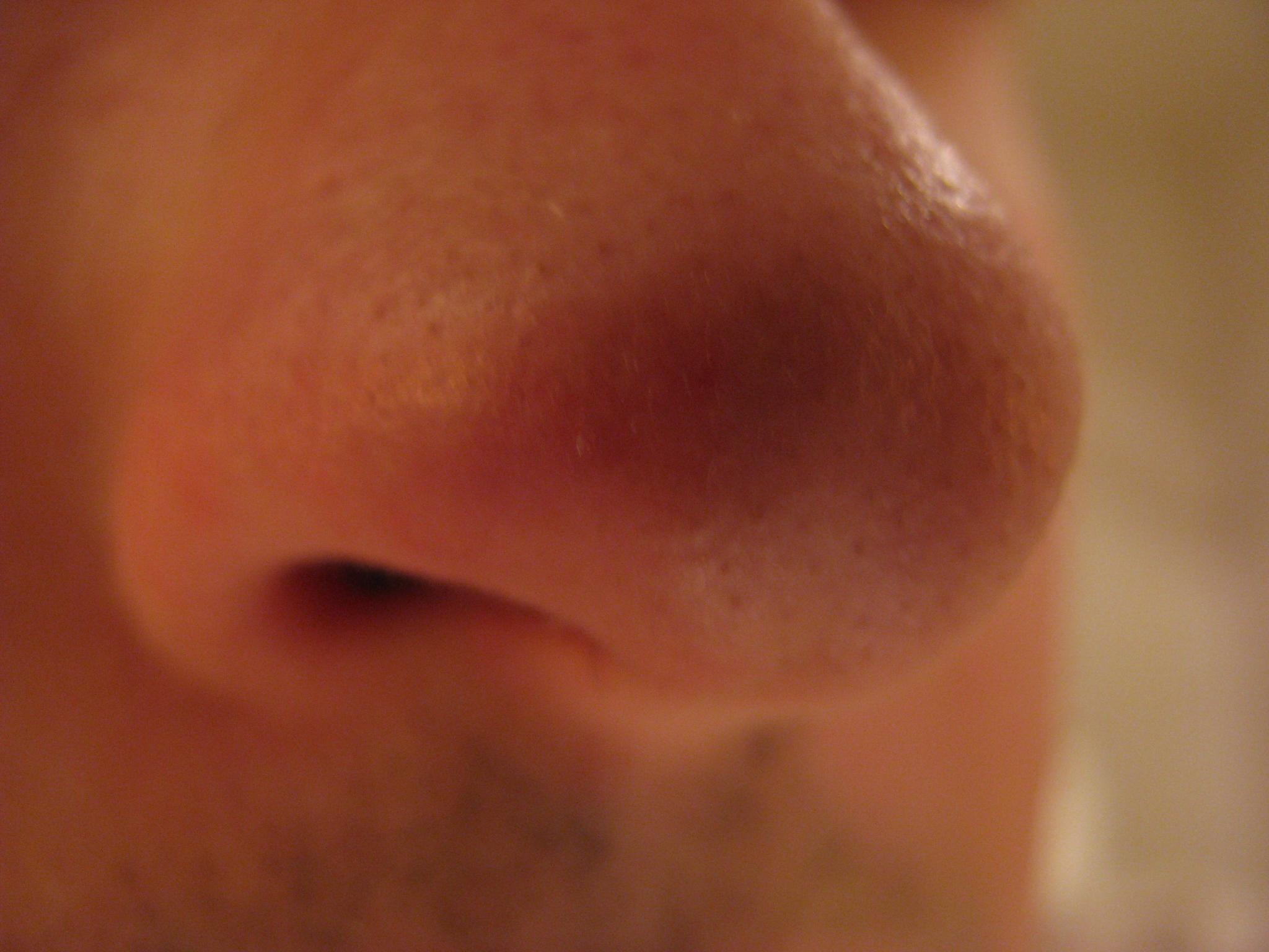 Постоянно гнойной прыщ на носу