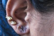 Симптомы и лечение ушного дерматита у людей