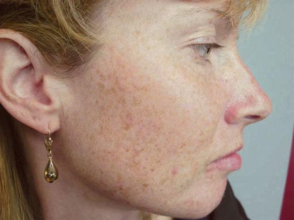 Отбеливающий концентрат для любого типа кожи серия белый лен