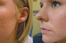 Как убрать рубец от прыща на лице за короткий срок?