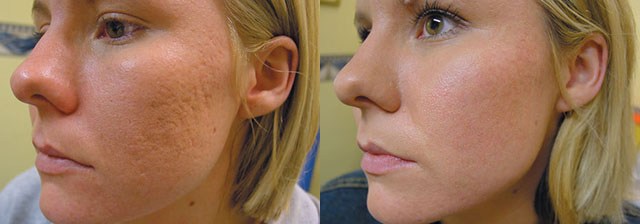 Удаление рубцов на лице после прыщей