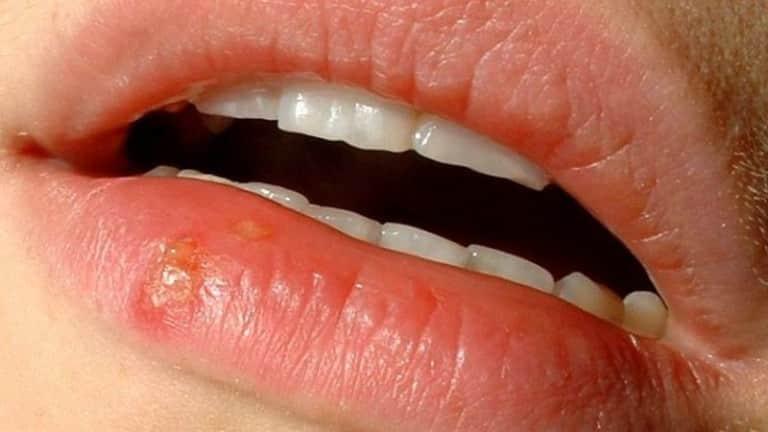Прыщик на губе и это не герпес - какие могут быть причины и как лечить
