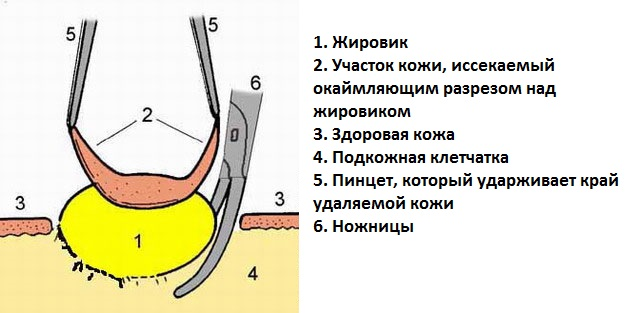 udalenie zhikovica nozhnicami