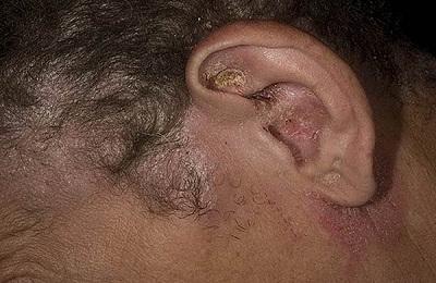 ushnoi-dermatit