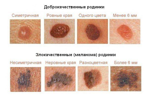 Сухие пятна на коже - какие причины их появления