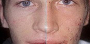 Что делать если появились воспаленные прыщи на лице