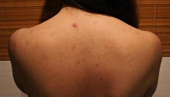 Какие причины прыщей на спине у женщин