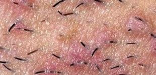Прыщи на лобке - почему появились, что значиат и как лечить