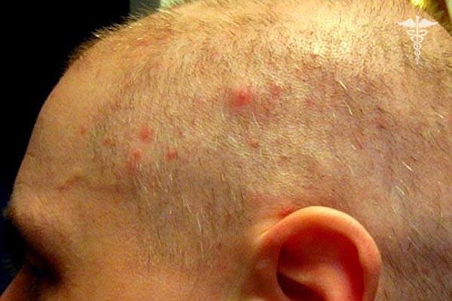 Прыщи на голове у мужчин лечение фото
