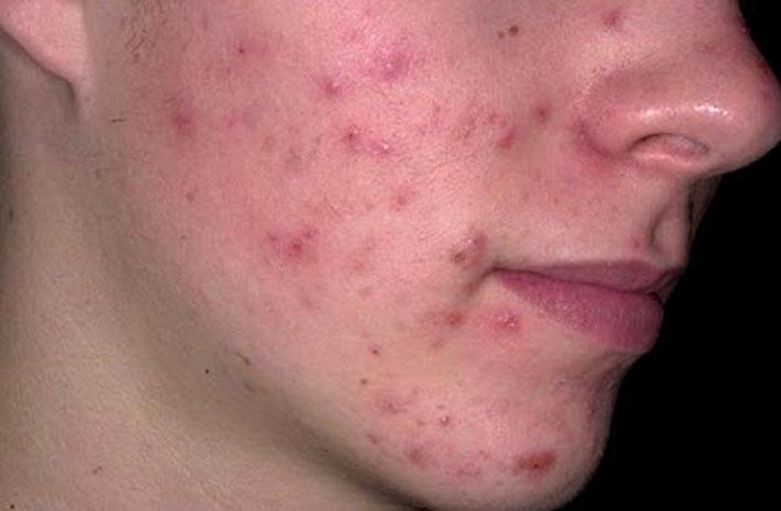Как почистить проблемную кожу лица