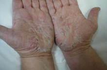 Контактный дерматит: симптомы и лечение
