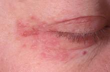 Пероральный дерматит: характеристика и причины возникновения заболевания
