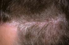 Псориаз волосистой части головы: лечение народными средствами