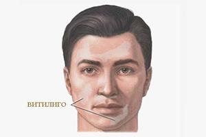 chto takoe vitiligo