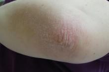 Как бороться с шелушением кожи на локтях?