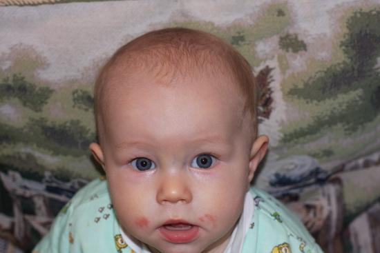 от чего появляется контактный дерматит у детей?