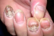 Первые признаки того, что у вас псориаз ногтей