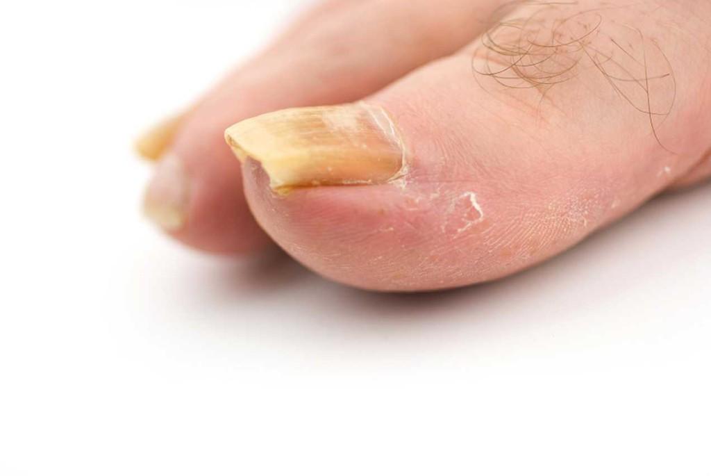 псориаз ногтей на ногах