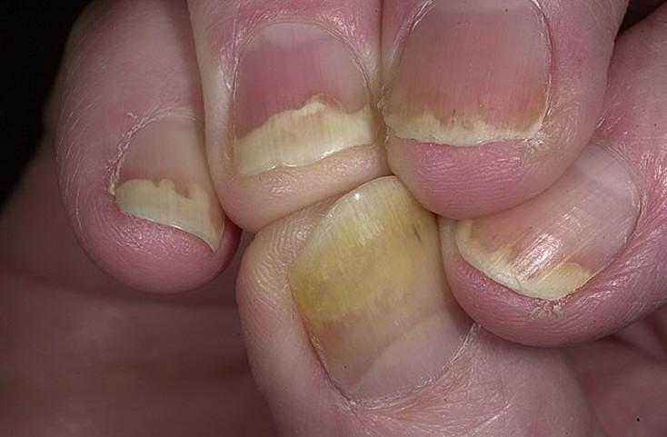 псориаз ногтей на руках