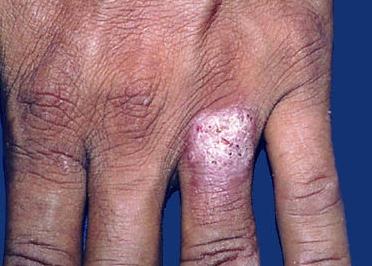 бородавчатый туберкулез кожи фото