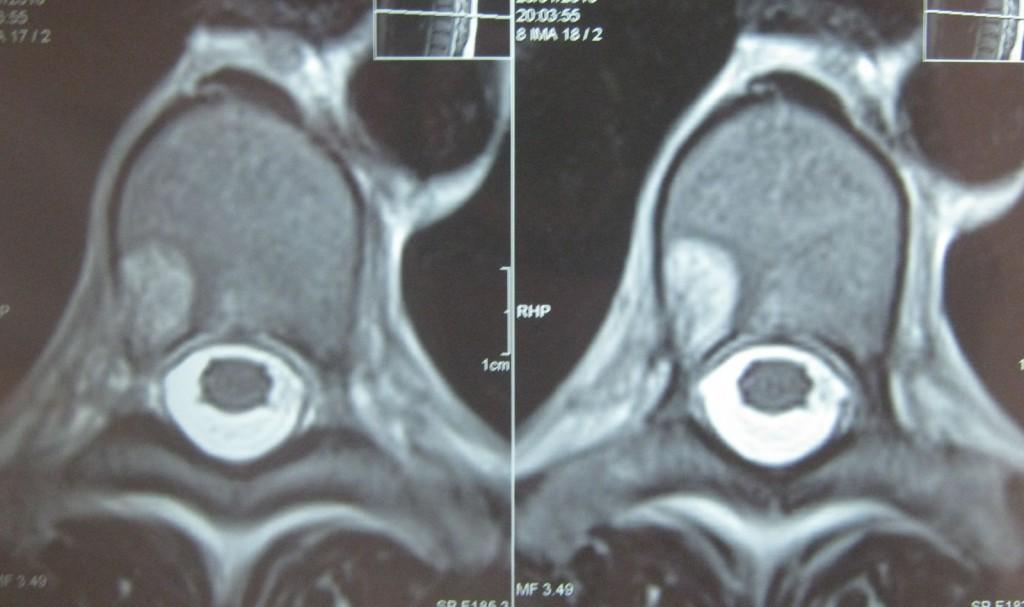 gemangioma-tela-pozvonka