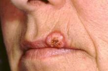 Кератоакантома кожи: фото, причины, удаление