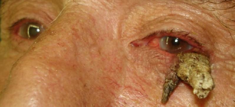 Кожный рог: что это такое, лечение, симптом, причина