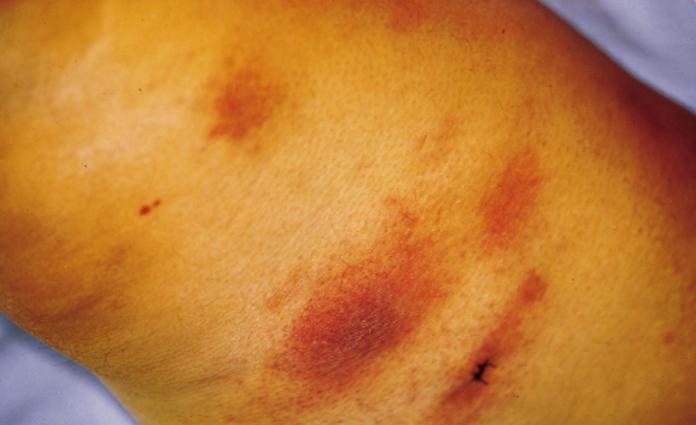 Милиарный туберкулез кожи фото