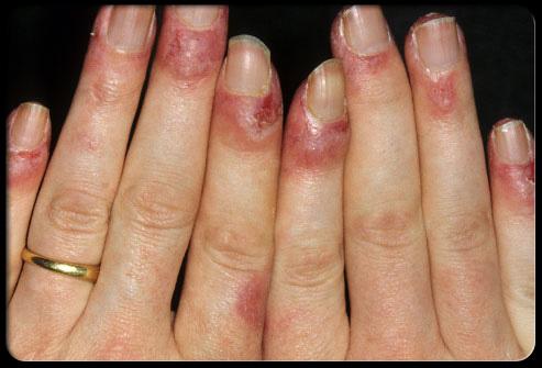 Сыпь на теле при туберкулезе фото