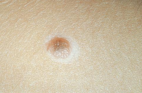 фото невуса на коже