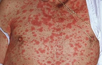 макулопапулезная сыпь на теле фото