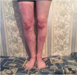 псориаз фото на ногах