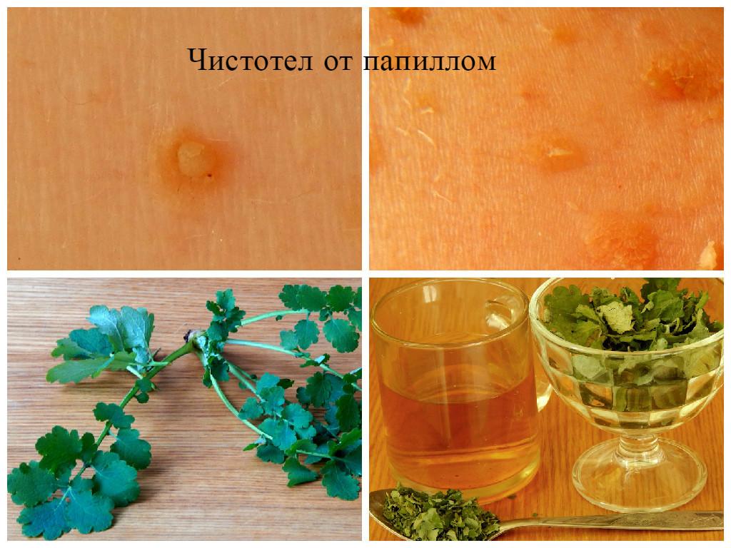 Как удалить папилломы с помощью салициловой кислоты