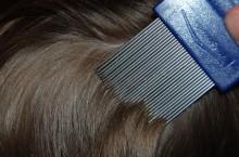 Как избавиться от вшей и гнид в домашних условиях