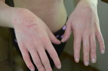Из-за чего может трескаться и сохнуть кожа на руках?