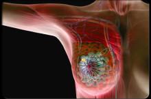 Рак молочной железы: фото, причины, симптомы