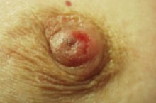 Рак Педжета молочной железы: фото, причины, симптомы