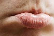 Почему появляются белые точки на губах под кожей?