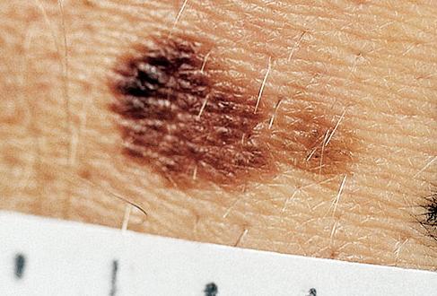 Вред от фотоэпилятора может быть получен и при неправильном уходе за кожей после проведения процедуры.