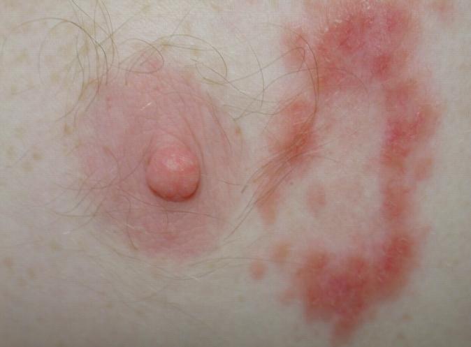 первичный сифилис фото