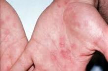 Сифилис: первичный, вторичный, третичный и врожденный