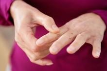 Что такое псориатический артрит