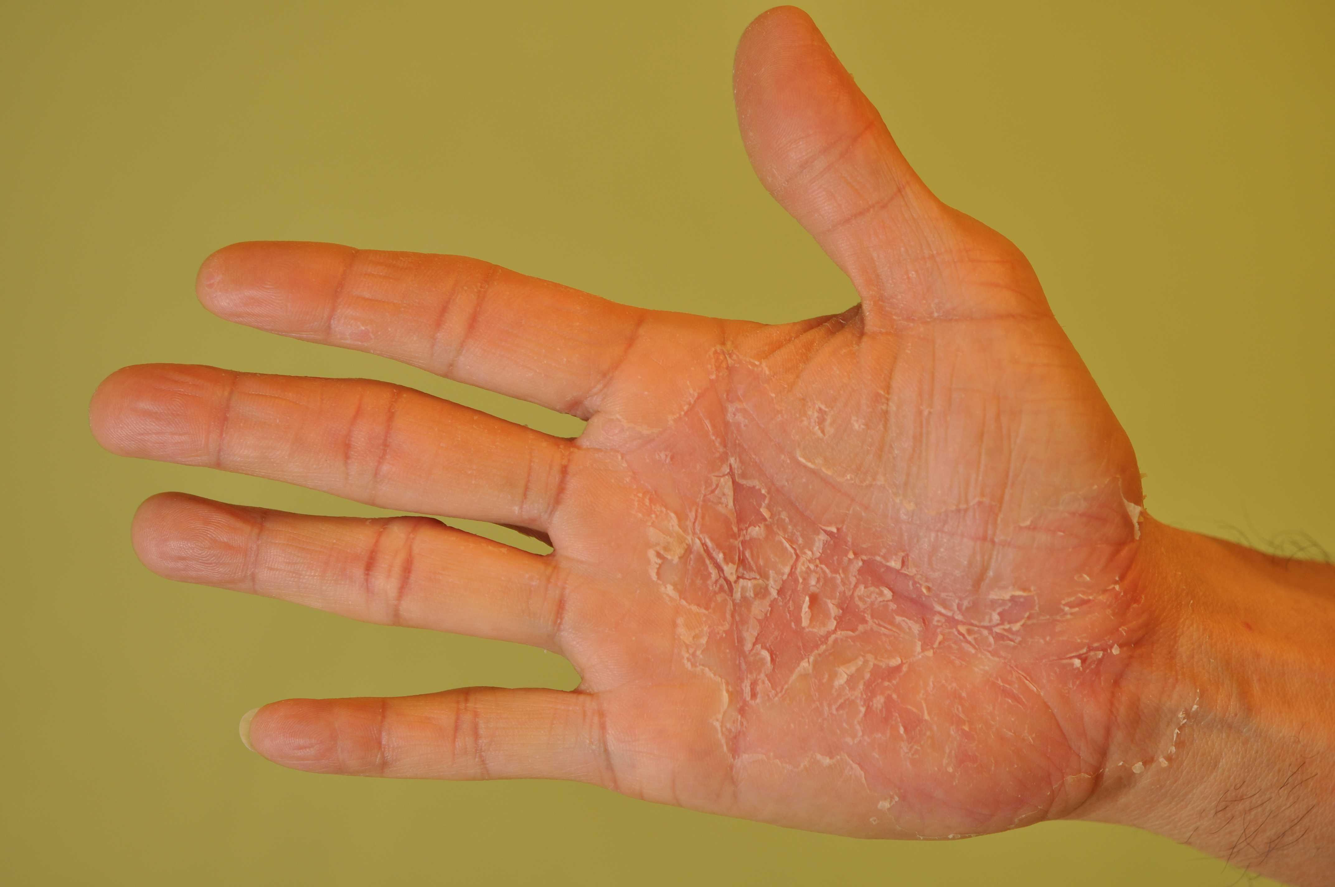 lechenie narodnym metodom psoriaz na rukax foto