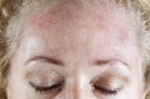 Себорейная форма псориаза головы