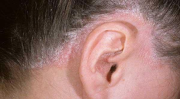 simptomy-psoriaza-v-ushakh-foto