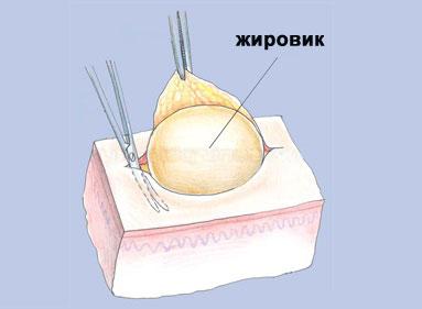 kak-udalit-zhirovik-v-domashnix-usloviyax