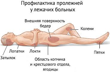 lechenie-prolezhnej-u-lezhachix-bolnyx