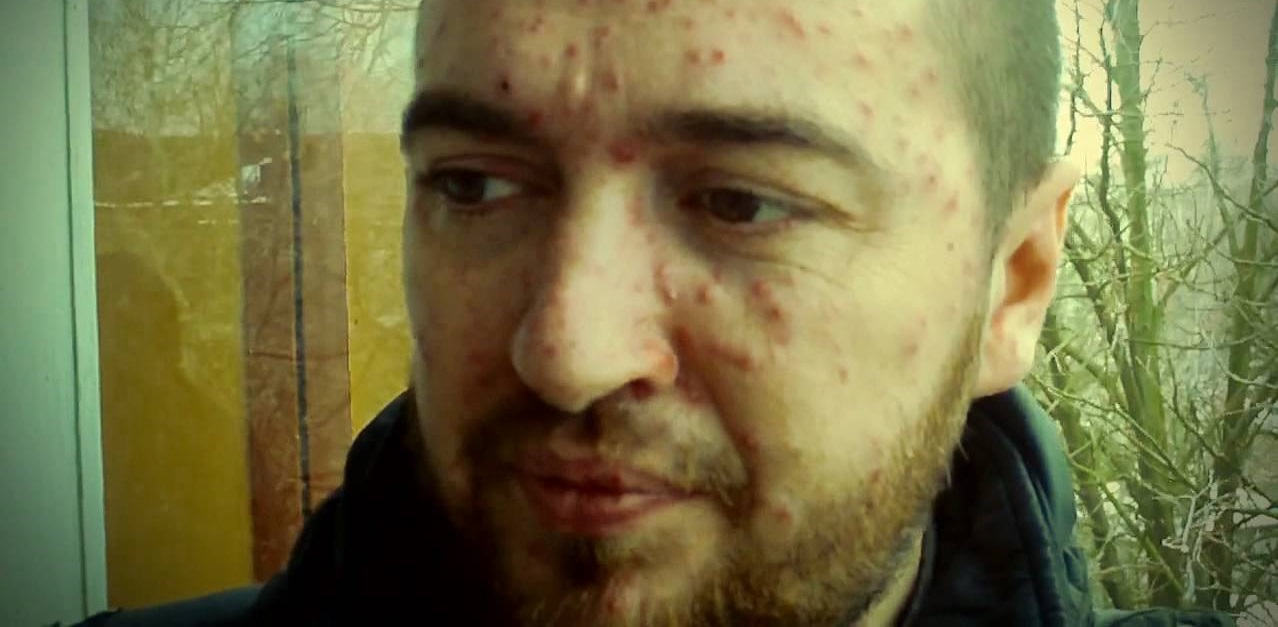 vetryanka-u-vzroslyx-simptomy-i-lechenie